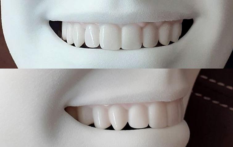 Resin Teeth (full scale)
