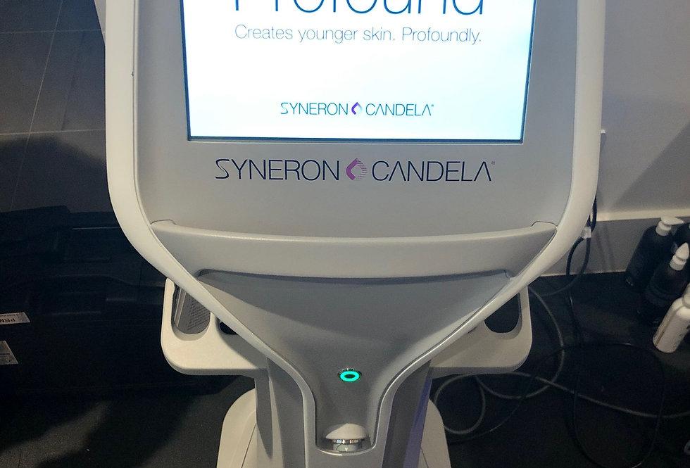 Syneron Candela Profound- 18'