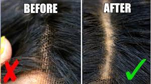 lace grids