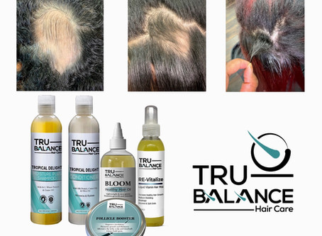Hair Growth & Fighting     Against Hair Loss or Hair Thinning