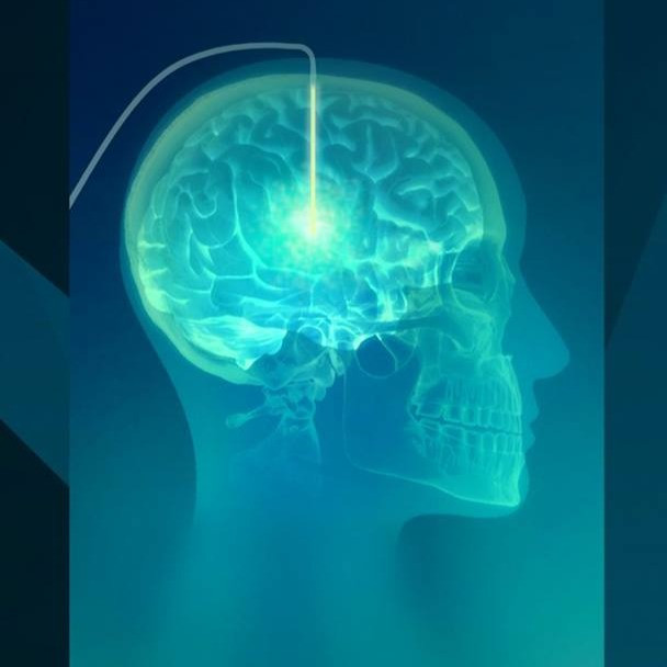 On the Brink: Advancements in Therapeutics for Neurodegenerative Diseases