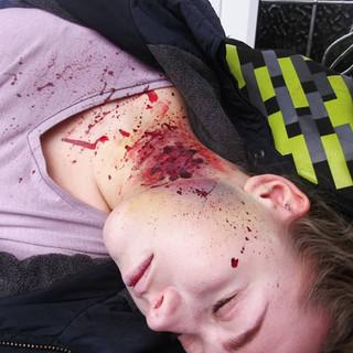 Zombie Apocalypse Victim