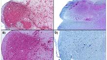 Antigen Retrieval in Brain Tissue