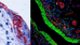 Gentle epitope recovery in weakly fixed or fragile tissues