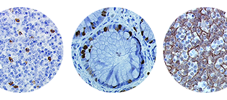 Epitope recovery on Tissue Arrays