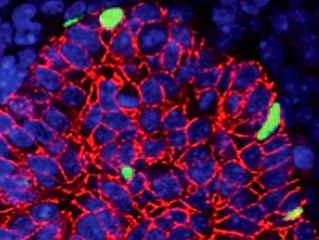 Immunofluorescense on Formalin-fixed/PF embedded sections