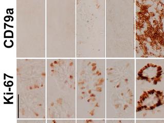Antigen Masking During Fixation and Embedding