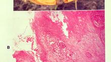 Papilomatozni digitalni dermatitis, nastavak