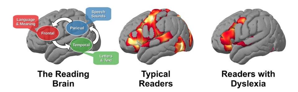 The reading brain - dyslexia - Chili Learning Center, Dsylexia Tutoring, Fresno, OH