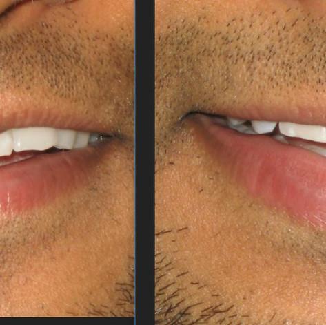 incisal edge repair before and after.JPG