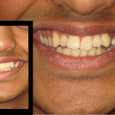 incisal edge before and after.JPG