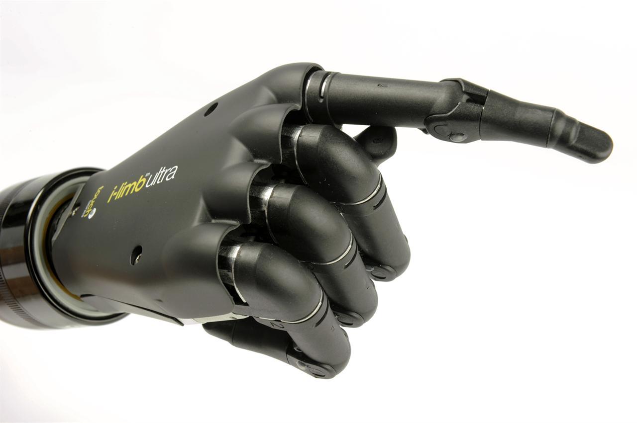 i-limb arm prosthetic