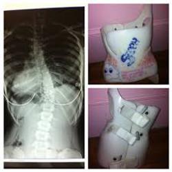 scoliosis brace2