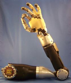 myoelectronic Arm prosthetic