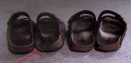 Wirbelsäulenbegradigung_Schuhe.jpg