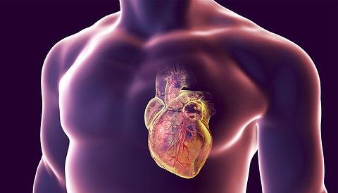 infarto-0418-1400x800.jpg