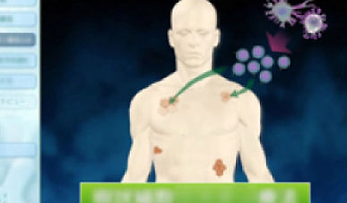 患者向けの疾患・治療方法説明動画