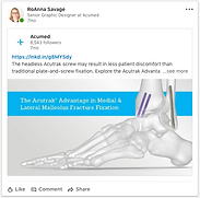 Acumed-LinkedIn-MedLat_Malleolus.png