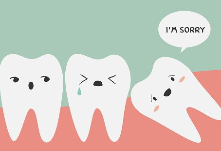 Are My Wisdom Teeth Are Causing My Teeth To Shift?