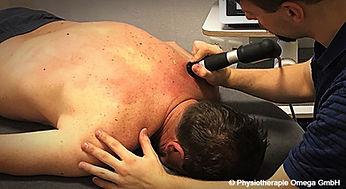 Die Stosswellentherapie wird z.B. oft am Fersensporn und an der Kalkschulter (Tendinosis calcarea) angewandt, kann jedoch auch für Triggerpunktbehandlungen angewandt werden.