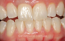 Dental Implants - After | Elite Perio | Periodontist, Gum Disease