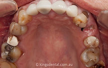 case 1 inner arch before photo | Kings Dental