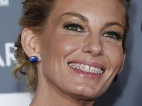 Faith Hill latest celebrity to show off her braces