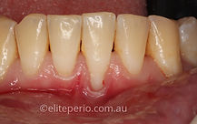 Soft-Tissue Grafting - Before | Elite Perio | Periodontist, Gum Disease