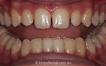 White fillings before photo | Kings Dental