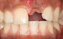 Dental Implants - Before | Elite Perio | Periodontist, Gum Disease