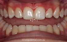 White fillings after photo | Kings Dental