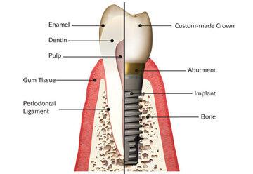 Dental Implants in Erskineville