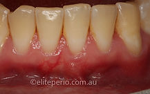 Soft-Tissue Grafting - After | Elite Perio | Periodontist, Gum Disease