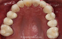 case 1 inner arch after photo | Kings Dental