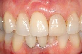 Complex Dental Implant - After | Elite Perio | Periodontist, Gum Disease
