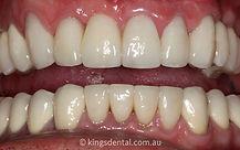 case 1 after image | Kings Dental