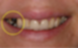 dental-crown-before.png