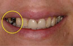 dental-crown-before.png