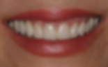 dental-crown-after.png