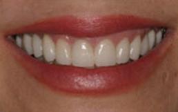dental-crown-after.png