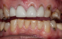 case 1 before image | Kings Dental