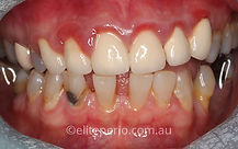 Crown Lengthening - Before | Elite Perio | Periodontist, Gum Disease