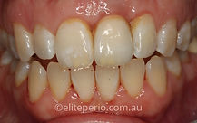 Crown Lengthening - After | Elite Perio | Periodontist, Gum Disease