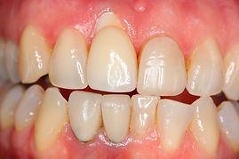 Complex Dental Implant - Before | Elite Perio | Periodontist, Gum Disease