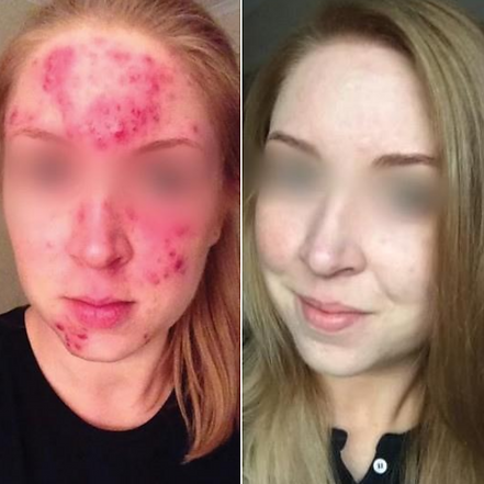 derma acna results.png