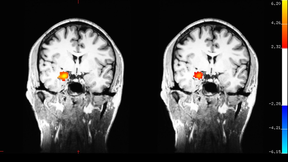 Functional MRI (left) showing activation in the amygdala when participants were watching images with emotional content before learning meditation. After eight weeks of training in mindful attention meditation (right) note the amygdala is less activated after the meditation training. Courtesy of Gaelle Desbordes