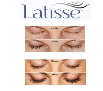 Latisse™ from Allergan