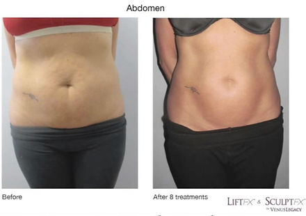 BeforeAndAfter - Stomach.jpg