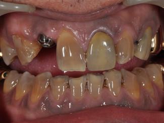 #7 Implant Crown