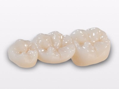 Zirconia Crown Porcelain